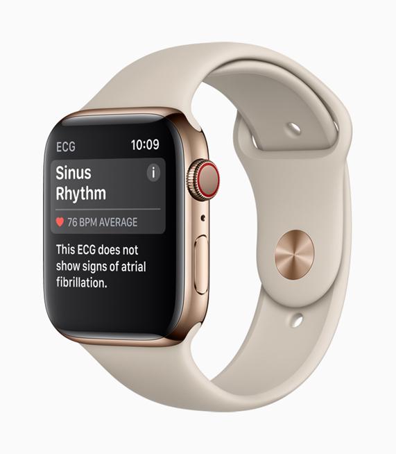 Apple Watch Series 4 屏幕显示出窦性心律的检测结果。